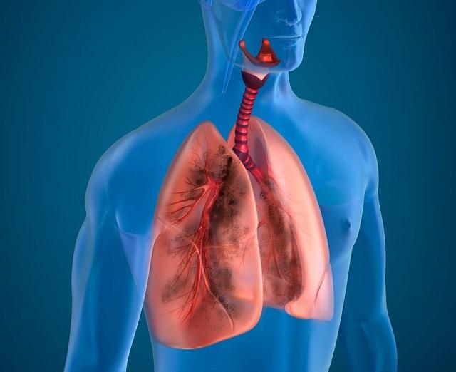 Лечение легочных заболеваний/заболевания дыхательной системы